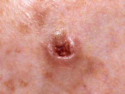 Basal Cell Carcinoma Treatment London