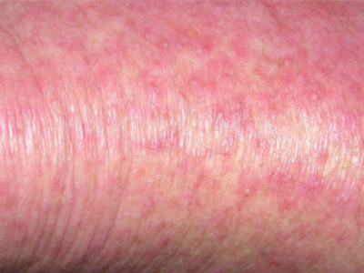Drug Rash Treatment London