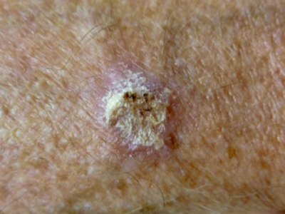 Squamous cell carcinoma treatment London