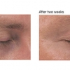 Ideal Complex- Revitalizing Eye Gel Results