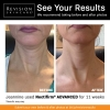 Nectifirm Advanced Neck Ageing Results