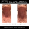 Nectifirm Neck Ageing Results